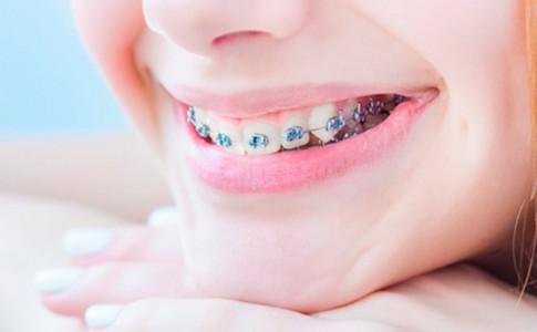 ortodoncia-zaragoza