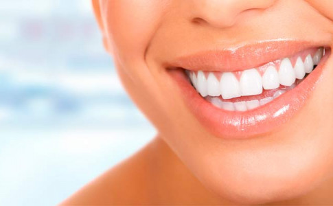 Tratamiento con carillas dentales