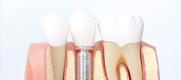 Implantes dentales en Montecanal