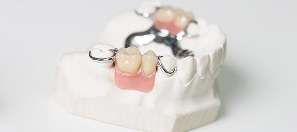 Prçotesis dentales fijas en Zaragoza