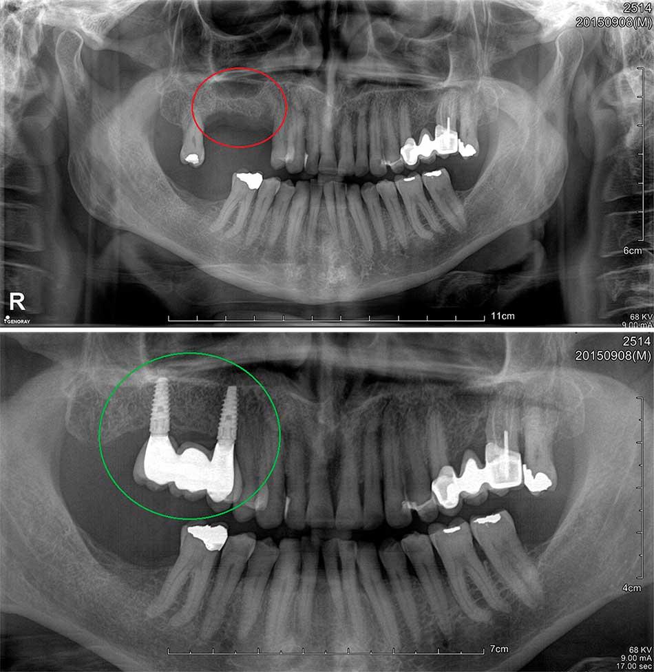 Implantes dentales radiografía