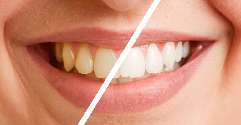 Diferencia de color de los dientes