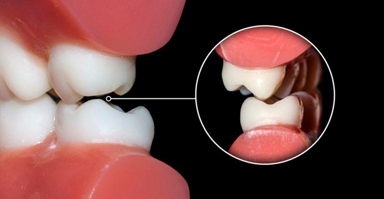 Oclusión-dental