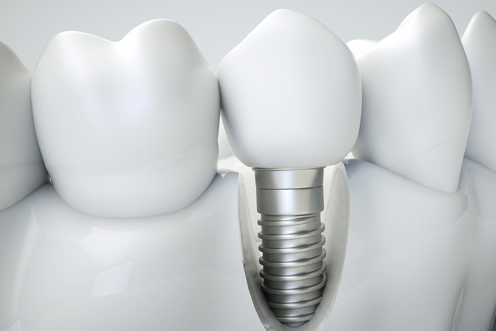 Proceso de osteointegración implantes dentales