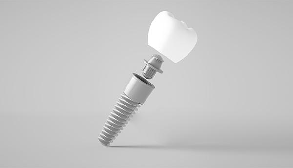 Qué es un implante dental