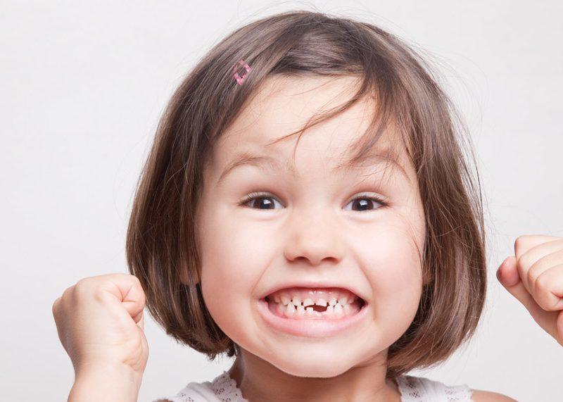 Todo lo que necesitas saber sobre los dientes de leche