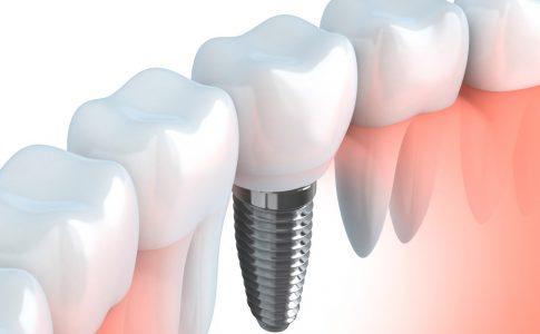 Duración-implantes-dentales