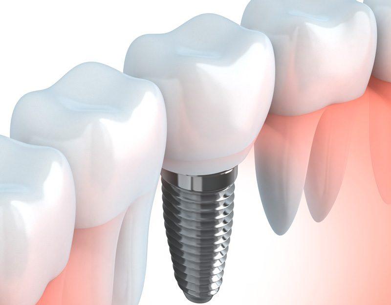 ¿Cuánto tiempo pueden durar los implantes dentales?