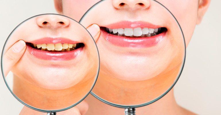 Manchas en los dientes. Tipos y soluciones.
