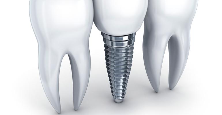 Implantes-Dentales-funciones