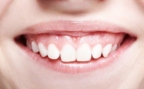 Sonrisa-gingival-tratamiento