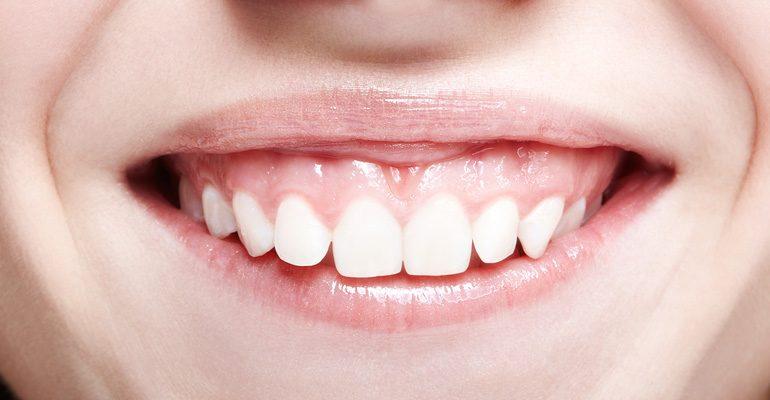 Solución a la sonrisa gingival y a la retracción de encías