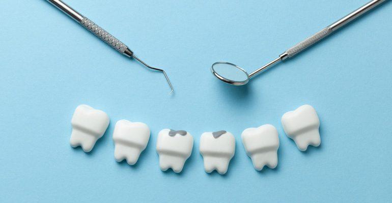 ¿Cómo se puede prevenir la caries dental?