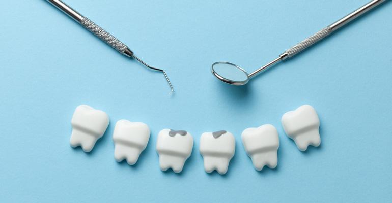 dientes-con-caries-dentales