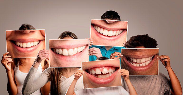 ¿Qué tipos de sonrisa existen?