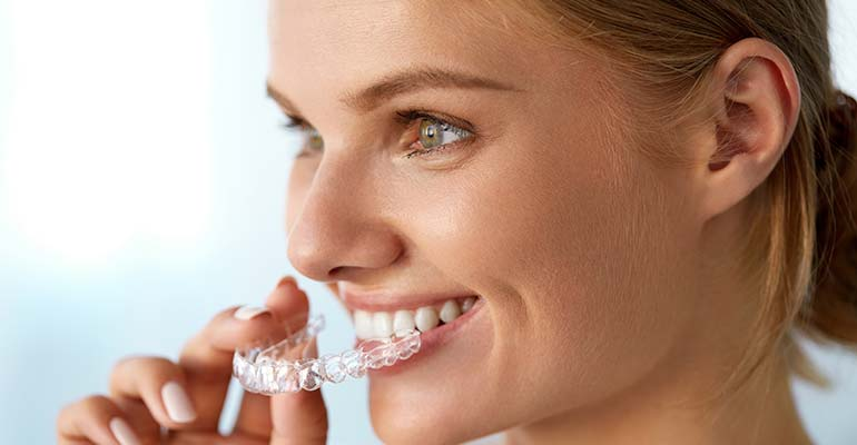 alinear-dientes-sin-brackets